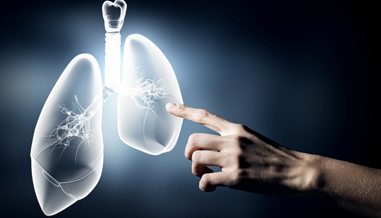 Innovative Cystic Fibrosis research to be explored