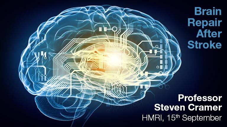 Seminar Series - Steven Cramer - Brain Repair After Stroke